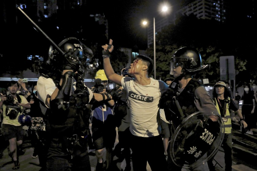 A bleeding man reacts as he is taken away by police outside Kwai Chung police station in Hong Kong on July 31. Protesters clashed with police again in Hong Kong on Tuesday night.