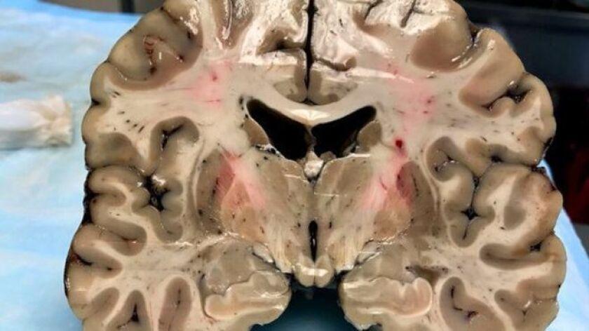 Pero lo que en principio parecía un cerebro sano, escondía debajo de su superficie un secreto que sorprendió a los científicos que llevaron a cabo la autopsia del jugador.