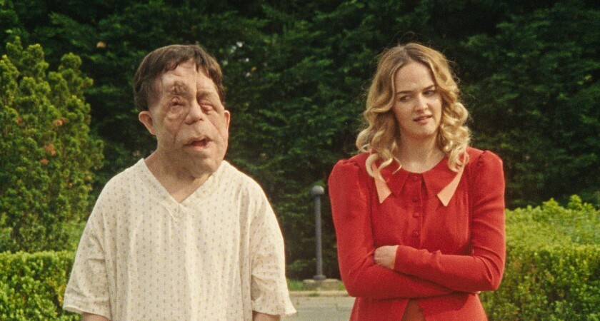 "Adam Pearson, who has neurofibromatosis, and Jess Weixler in ""Chained for Life."""