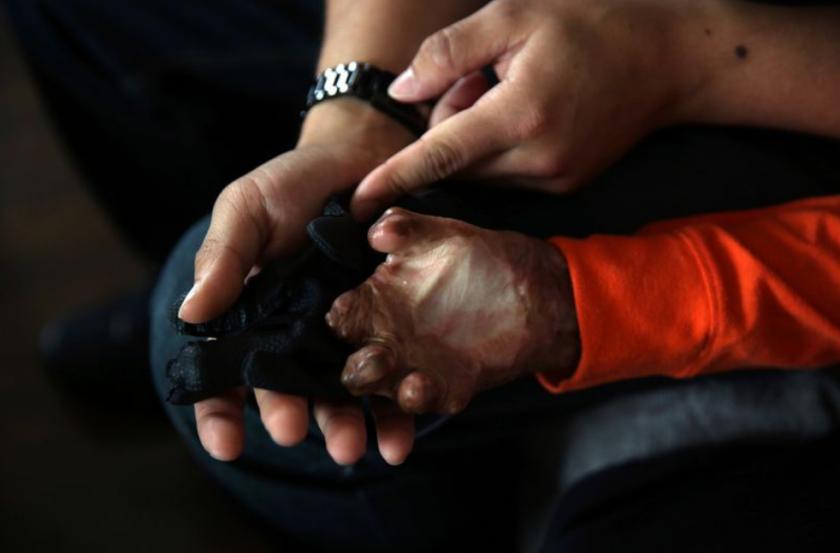 Austin Conrad verifica el tamaño de la mano de Julián Reynoso, para que se adapte a una prótesis. (Dania Maxwell / Los Angeles Times)