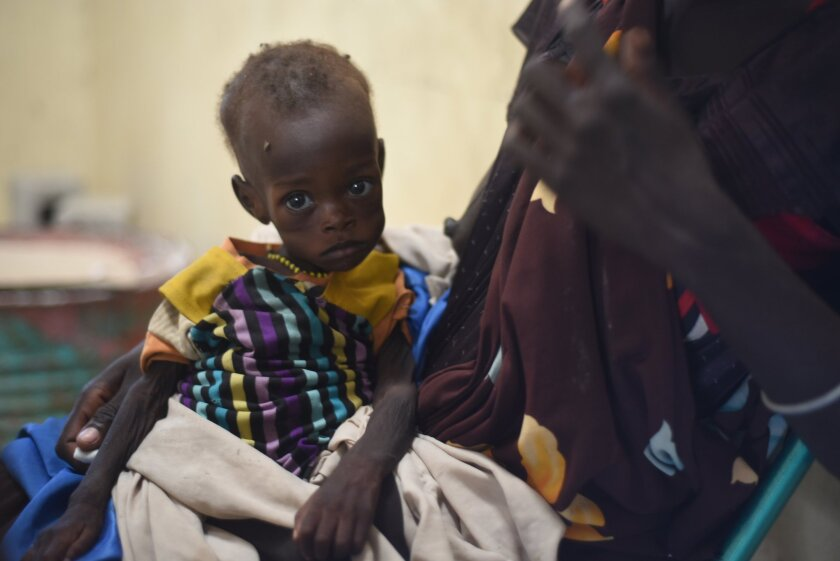 Nyagoah Taka Gatluak, a severely malnourished 1-year-old, sits on her mother's lap at the Doctors Without Borders clinic in Leer, South Sudan, on Dec. 15, 2015.