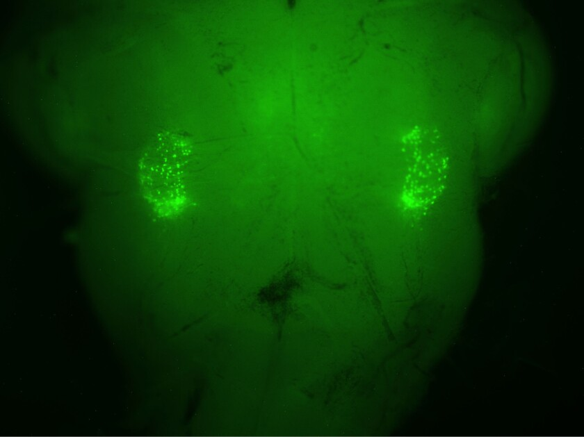 Sighing neurons