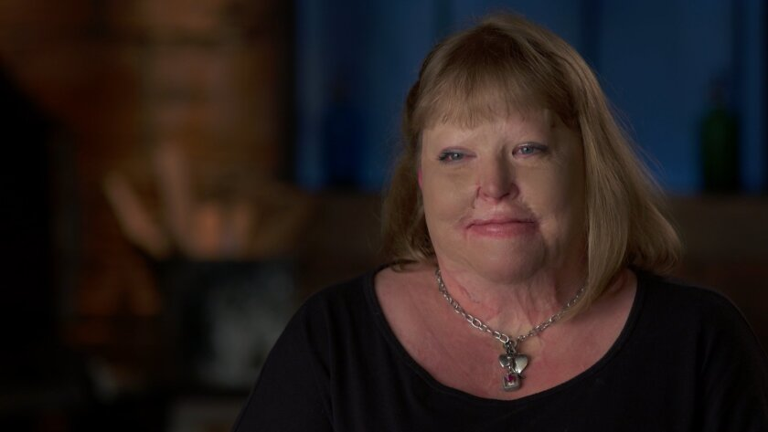 Allyson Roach Watson was burned over 85 percent of her body when wildfire ravaged San Diego County in 2003. She has recovered, married and is leading a normal life.