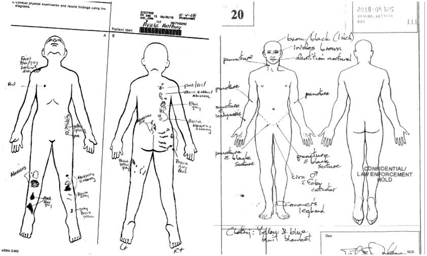 Anthony Avalos autopsy report