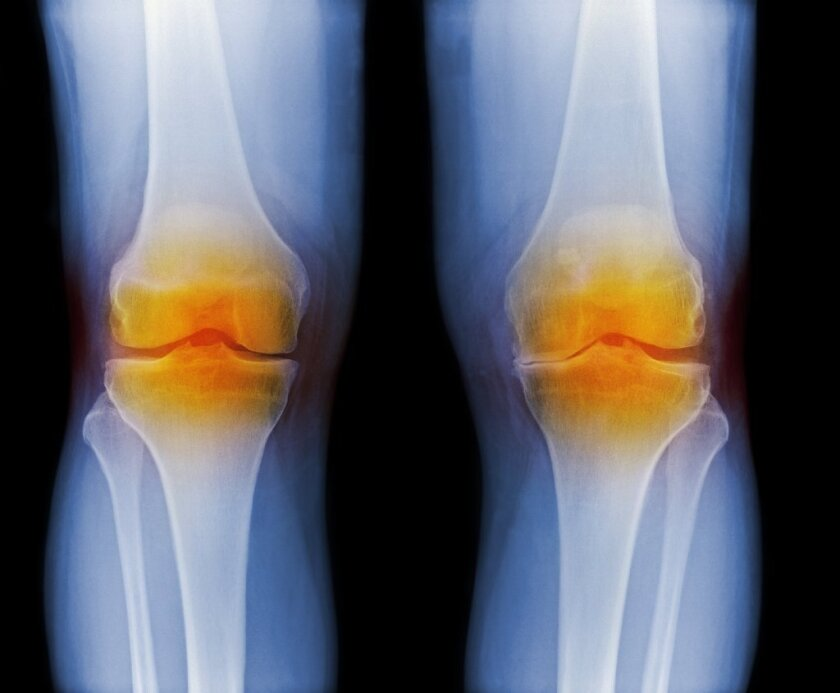 For arthritis in areas such as the knees, a new study found acetaminophen to be ineffective in reducing pain and increasing function. The study authors said NSAID painkillers were a better, but not a long-term, option.