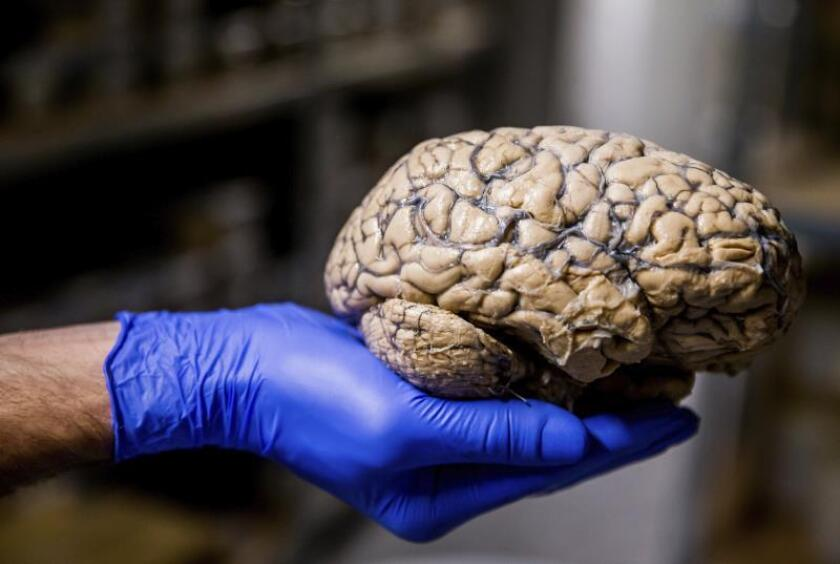 A researcher shows an entire human brain dipped into formalin at the Duffel Psychiatric Hospital, in Duffel, Belgium. EFE/EPA/Stephanie Lecocq/File