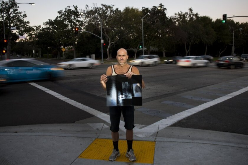 Paul Livingston holds his back x-rays at the intersection of Santa Monica Boulevard and North Crescent Drive, where he was struck while riding his bike, in Beverly Hills.