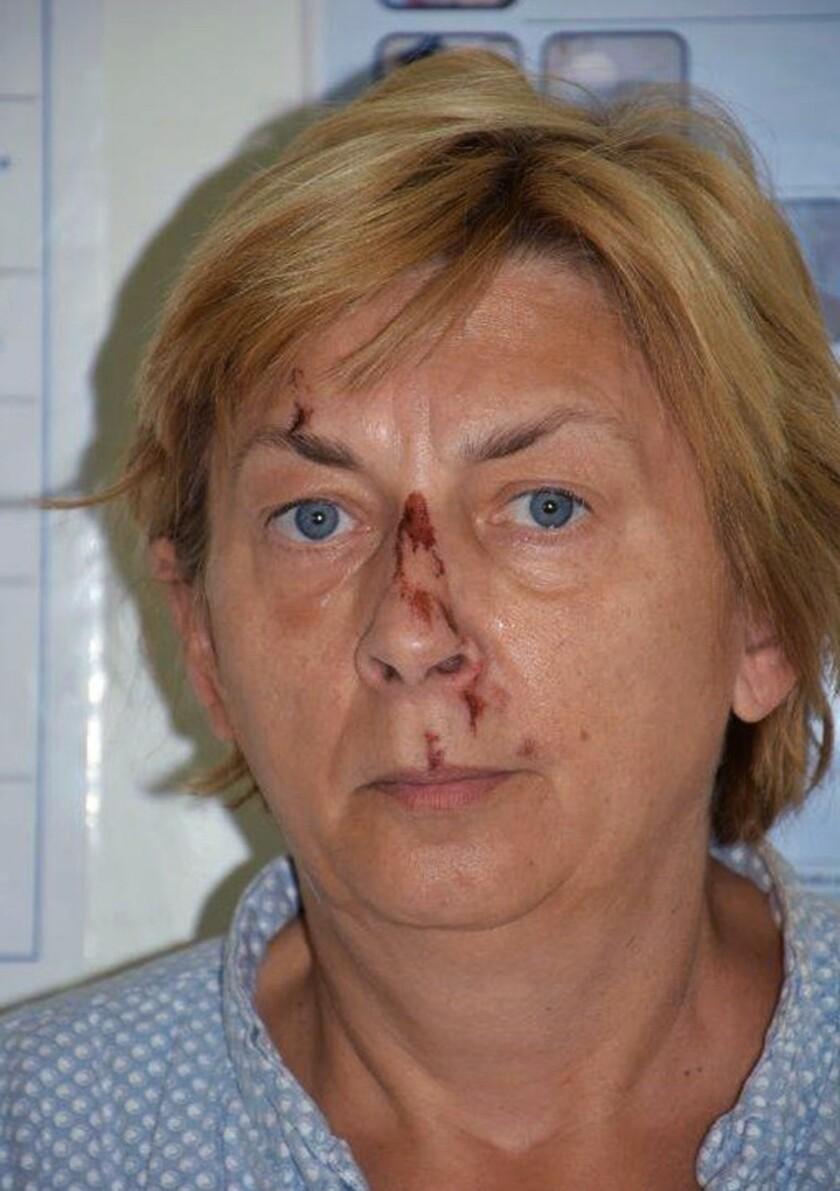 Esta foto sin fecha publicada por la policía de Croacia muestra a una mujer no identificada que fue descubierta en la isla de Krk, en el Adriático, el 12 de septiembre. (policía de Croacia vía AP)