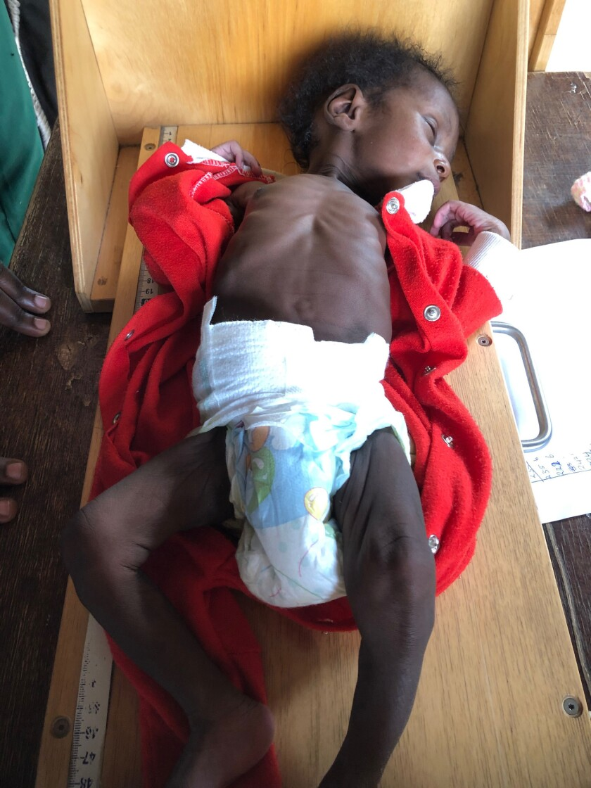 Sufiyan, a one-month-old at an orphanage in Kaduna, Nigeria, was examined in the pediatric unit at t