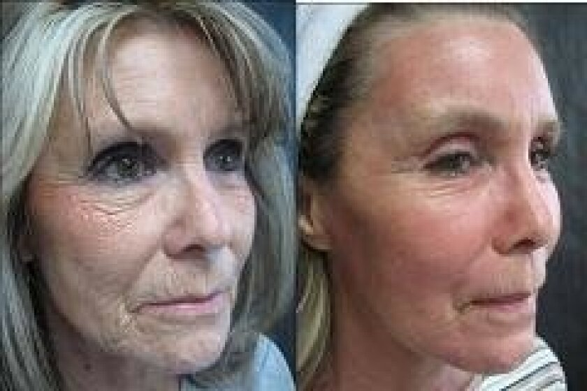 Sun damage skin treatments can reverse the signs of aging.