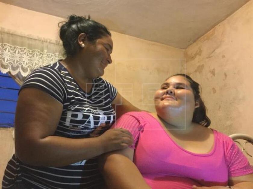 Dayana Camacho, quien con 195 kilos es considerada la adolescente más obesa del mundo, fue sometida hoy a un bypass gástrico por laparoscopia en la occidental ciudad mexicana de Guadalajara y se recupera satisfactoriamente, indicaron fuentes médicas.