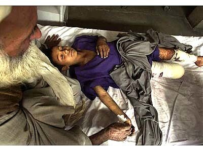 Held by his father, Taj Mohammad, Sath Mohammad, 10, lies sedated in a Quetta, Pakistan hospital hours after his right leg was amputated.