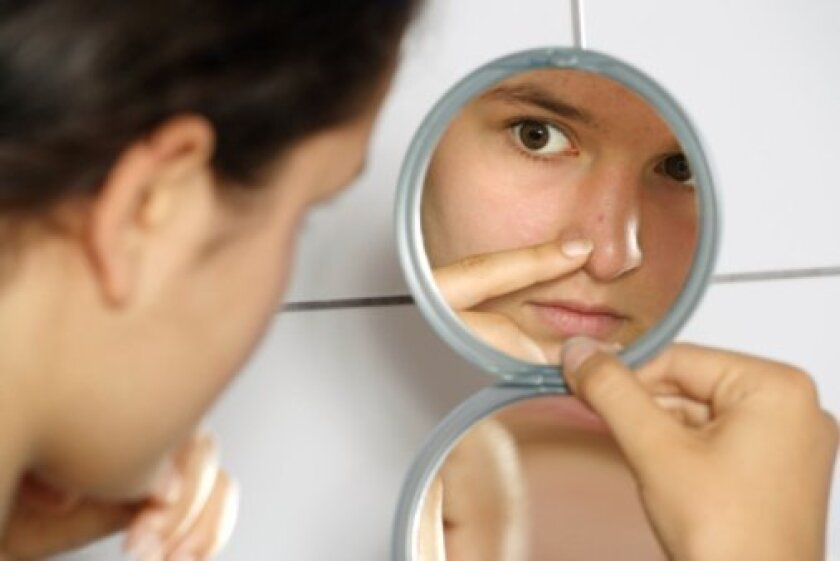 Acne dermatologist in La Jolla tells us that teenage acne can be prevented. Learn how. -By Dr. Stacy Tompkins