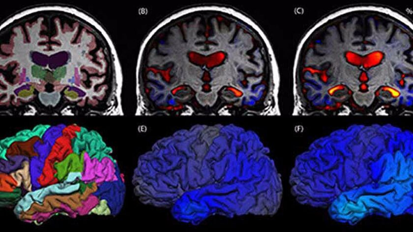 Serial MRI brain scans, taken six months apart, show progression from mild cognitive impairment to Alzheimer's disease with significant atrophy (blue) and ventricle enlargement(orange/red)