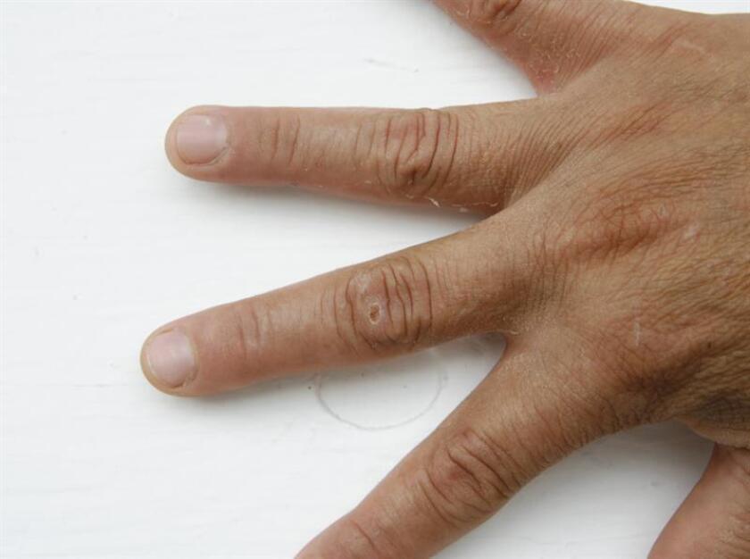 Vista de la mano de una paciente donde se muestra la cicatrización de heridas. EFE/Archivo