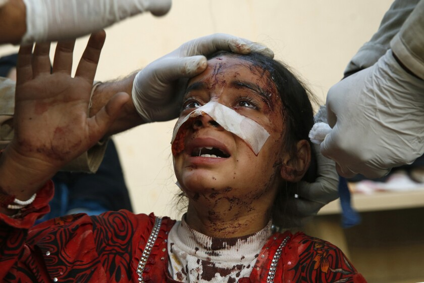 Menar Hassan, age 8, cries as doctors try to doctor her wounds after a suicide truck bombing. Her father died at the scene and had to be left in the rubble.
