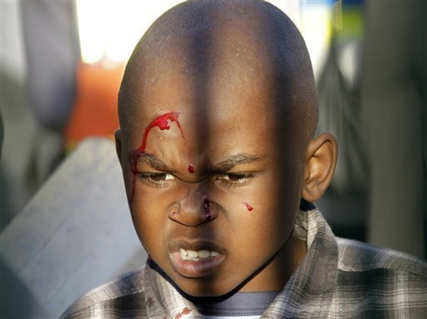 A child, his face bleeding, looks on prior to the warmup match between North Korea and Nigeria in Johannesburg, South Africa, Sunday June 6, 2010. Thousands of soccer fans stampeded the gates outside a stadium Sunday before a World Cup warmup match between Nigeria and North Korea. Several fans coul