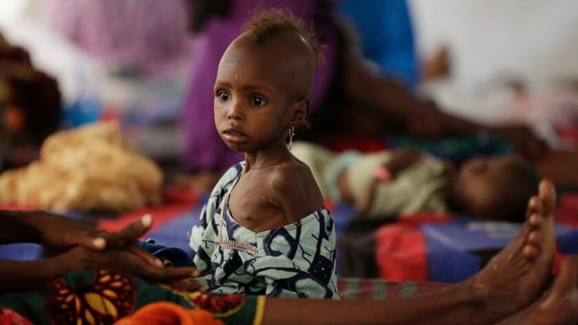 Malnourishment is one of the dangers faced by children fleeing Boko Haram violence in Nigeria.