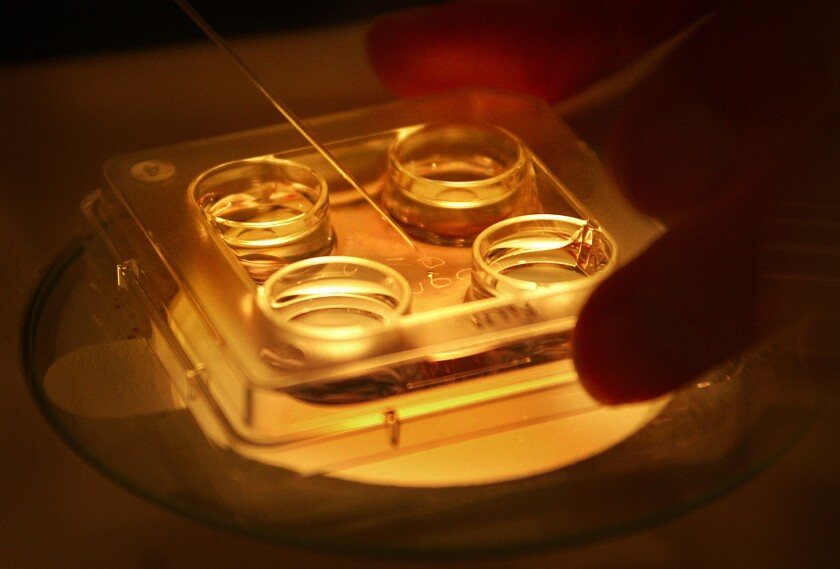 USC Fertility laboratory director Mary Francis inspects human eggs frozen with liquid nitrogen.