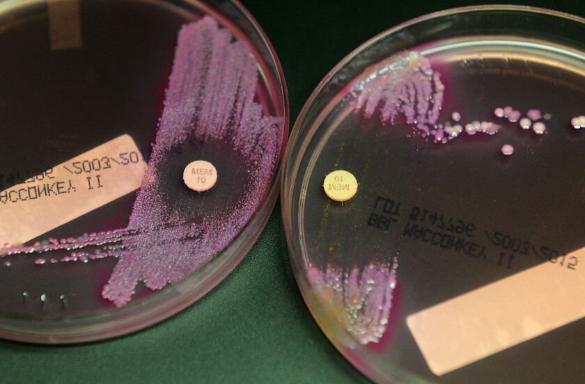 LONG BEACH, CALIFORNIA JULY 16, 2015 - UCLA microbiologists swab patient samples on plates and let t