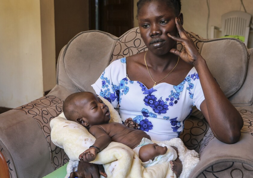"Abui Mou Kueth's infant son, Ping, was born with six fingers on each hand, one stunted leg, a deformed foot and kidney swelling. ""I was shocked the first time I saw the baby,"" she said."