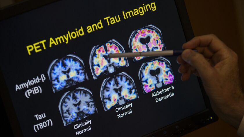 A doctor points to PET scan results that are part of a study on Alzheimer's disease at a hospital in Washington in 2015.