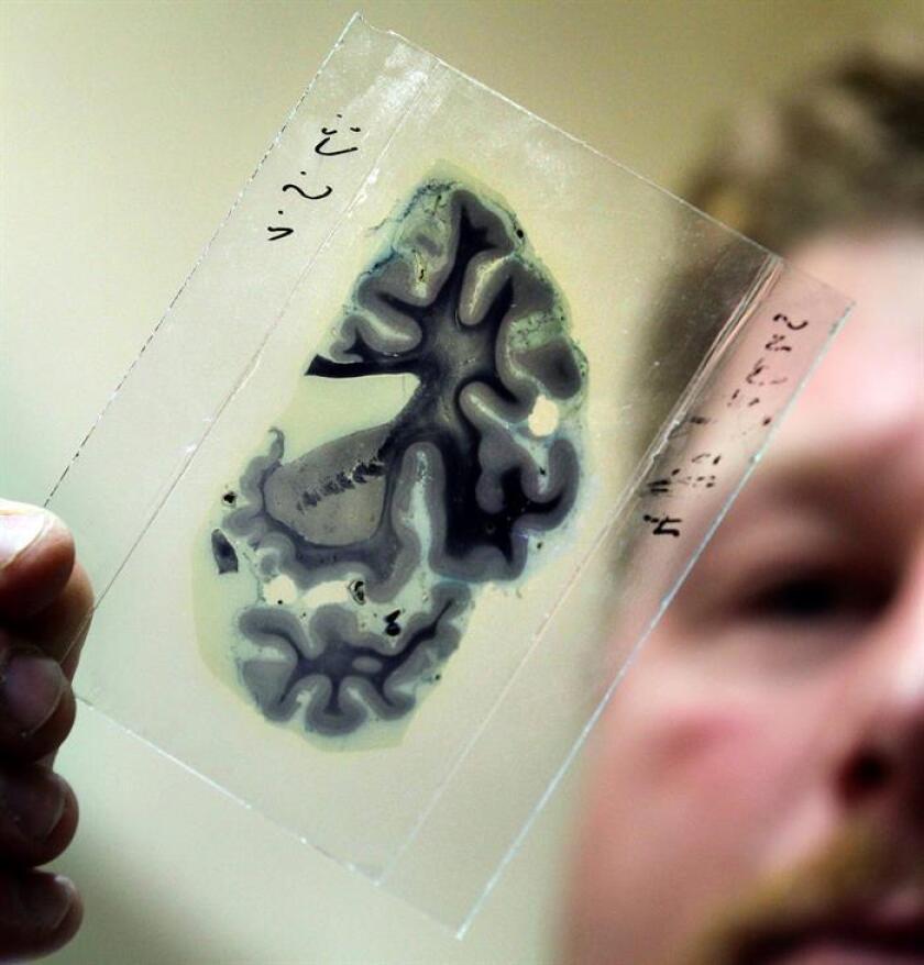 Un estudio de la Escuela de Medicina de la Universidad de Stanford presentado hoy reveló que las transfusiones de plasma sanguíneo de personas jóvenes a pacientes con Alzheimer moderado pueden producir mejoras en las condiciones de los últimos. EFE/ARCHIVO