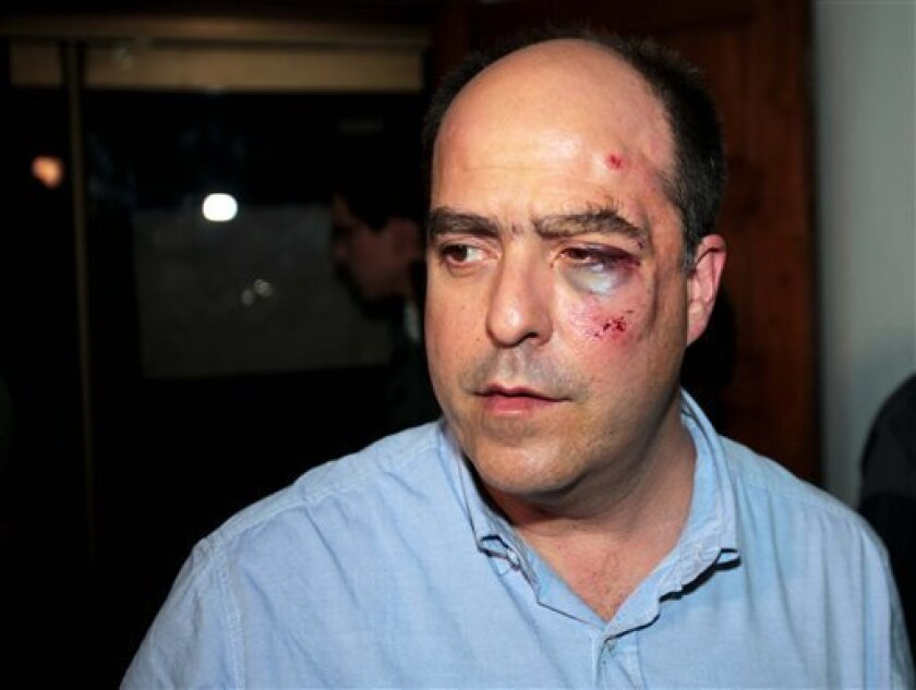 Opposition lawmaker Julio Borges arrives with a bruised face to his political party's headquarters before speaking to the press in Caracas, Venezuela, Tuesday, April 30, 2013.  Members of Venezuela's National Assembly say post-election tensions set off a brawl between lawmakers that left Borges bad