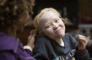 Albino sisters from Tanzania granted asylum