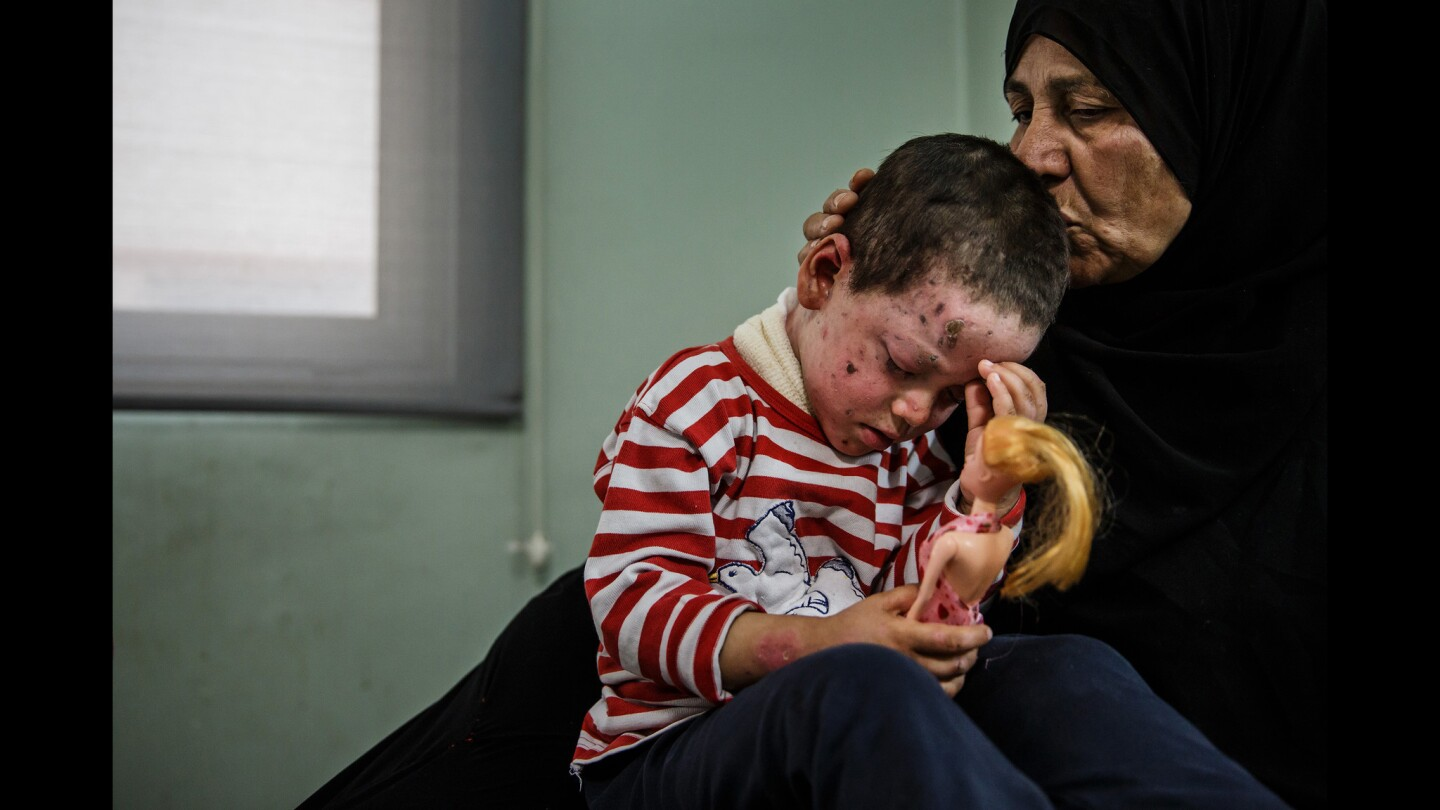Alia Ali kisses her granddaughter Hawra Hassan, 4, who suffered shrapnel wounds on her face, neck and left eye, along with a broken foot from the March 17 U.S. airstrike on Mosul's Jadidah neighborhood.