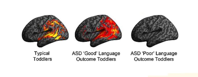 """From left, these three images depict patterns of brain activation in toddlers 12 to 19 months who are (1) typically developing, (2) autism spectrum disorder """"Good"""", and (3) ASD """"Poor"""" language. These images are based on brain scans of activity while exposed to speech sounds."""