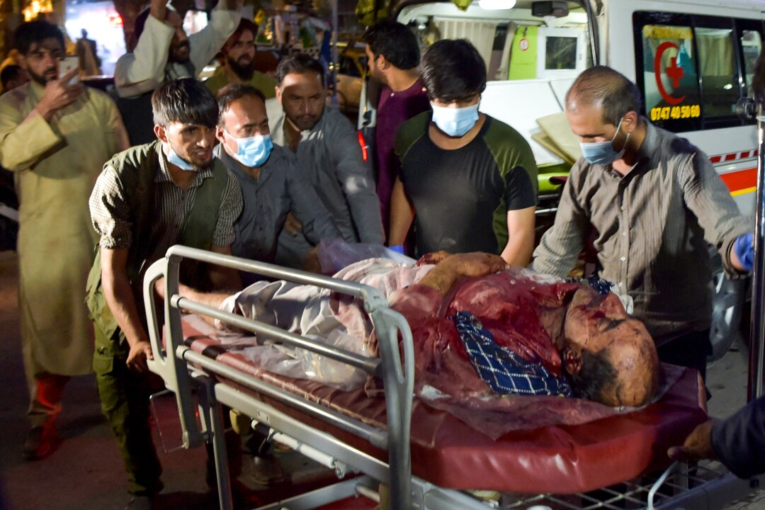 Volunteers and medical staff bring an injured man, whose body is bloodied, to the hospital for treatment.