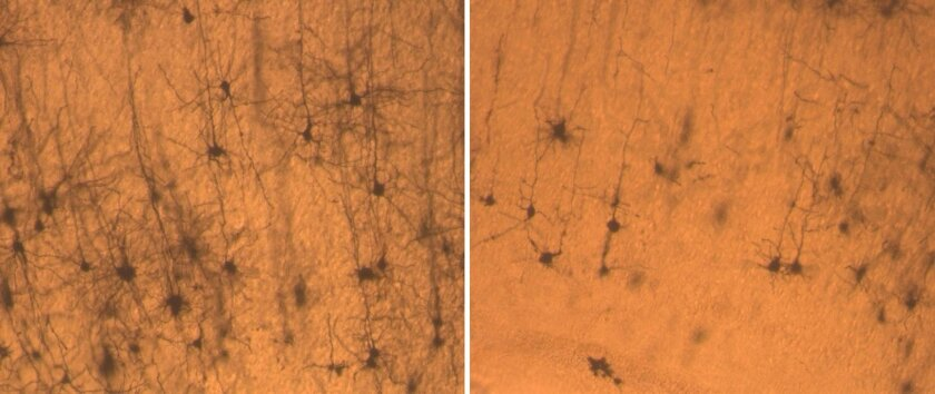 Neurons from a normal mouse (left) are longer and fuller than neurons from a mouse with reduced levels of the brain protein SNX27 (right).