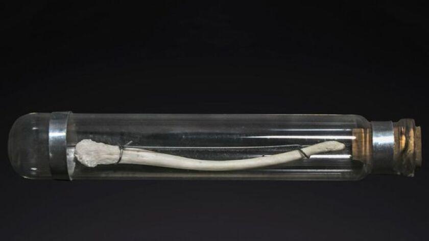 Nuestros parientes en la evolución -como los chimpancés- tienen en la punta de sus penes un hueso.