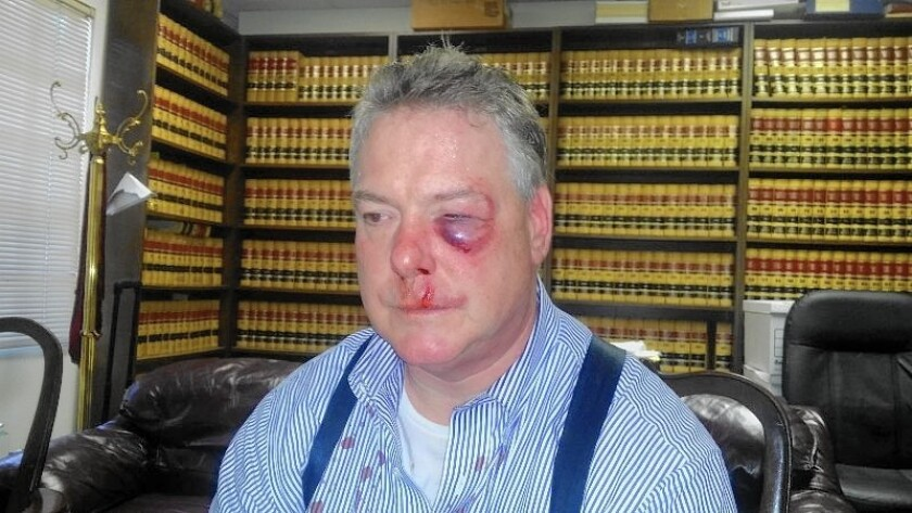 Defense attorney James Crawford was injured in a courthouse confrontation with an investigator for the Orange County district attorney's office.