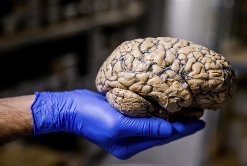 A researcher shows an entire human brain dipped into formalin. EPA/EFE/FILE