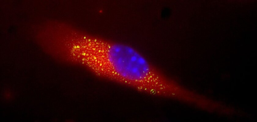 The glowing yellow specks in the image show uptake of the nanosponge vaccine by a mouse dendritic cell -- an immune-system cell. The MRSA toxins were labeled with a fluorescent dye which glows yellow. The nanosponge vaccine with detained toxins and can be seen glowing yellow after uptake by the dendritic cell. The cell is membrane stained red and the nuclei stained blue.