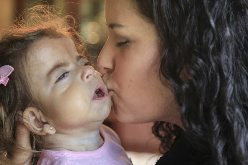Sadie Christina Higuera, 1, (will be 2 on May4th) spends time at home with her mother Damaris on Friday evening in Ramona, California. Sadie has a rare genetic disorder and a medical marijuana based substance  has almost stopped the 300/day seizures she was having.