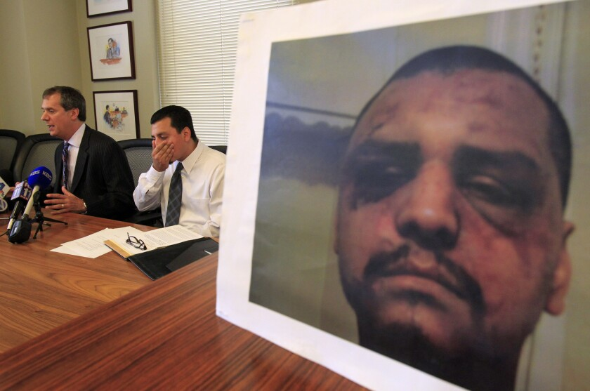 Gabriel Carrillo listens in May 2014 to attorney Ronald Kaye, next to a picture of Carrillo's face after an encounter with Los Angeles County sheriff's deputies.