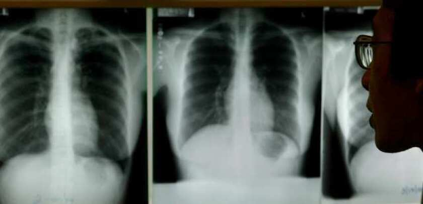 A doctor in Los Angeles studies chest X-rays for evidence of tuberculosis. A Modesto student has been diagnosed with the disease.
