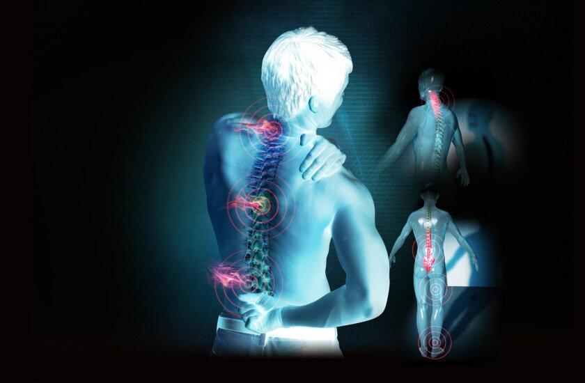 La hiperlordosis lumbar provoca dolor porque las estructuras ligamentarias modifican su posición y las articulaciones tienen que cargar más peso.