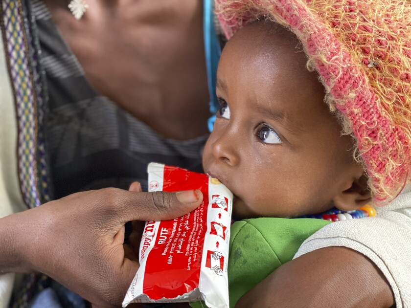 Amanuel Berhanu, held by his mother, eats emergency food after being screened for malnutrition in Debub Health Centre in Wajirat woreda in Southern Tigray in Ethiopia, Monday July 19, 2021. More than 100,000 children in Ethiopia's embattled Tigray region could face the most extreme and life-threatening form of malnutrition in the next year, the United Nations children's agency warned on Friday July 30, 2021, as humanitarian aid remains blocked from the region of some 6 million people. (UNICEF via AP)
