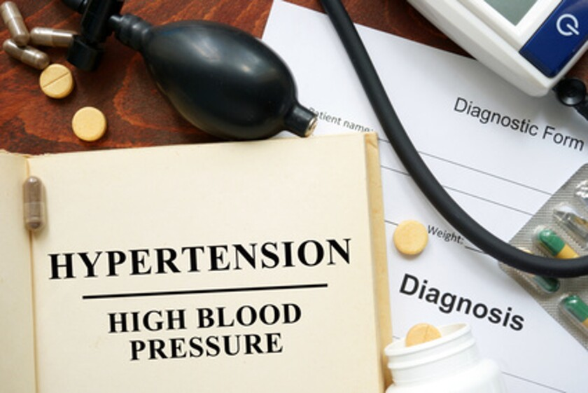 Can my varicose veins affect my blood pressure?