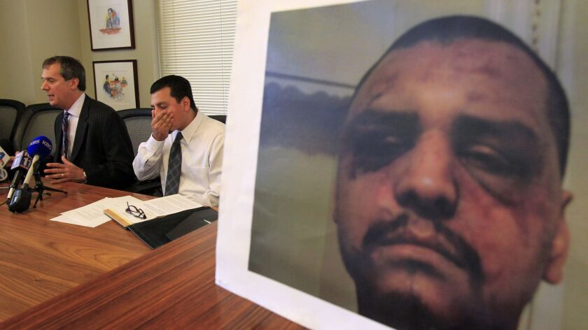 Gabriel Carrillo and his attorney speak in 2014 next to a photo of injuries Carrillo suffered in a beating by L.A. County deputies at Men's Central Jail. On Friday, a federal jury convicted a former deputy of lying to FBI agents about the beating.