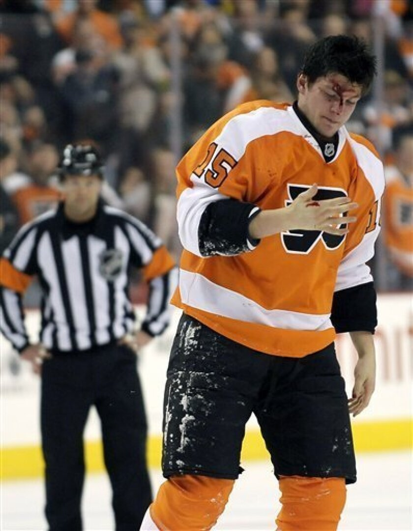 Philadelphia Flyers' Tye McGinn (15) looks at blood on his hand after fighting Toronto Maple Leafs' Mike Brown in the first period of an NHL hockey game, Monday, Feb 25, 2013, in Philadelphia. (AP Photo/Michael Perez)
