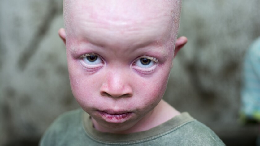 A Malawian boy with albinism, a genetic condition that leads to a lack of pigmentation. In Malawi an