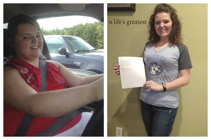Faith Newsome before and after gastric bypass surgery