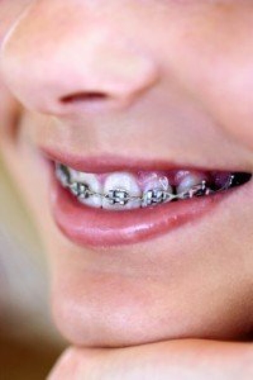 Kids who get braces early may avoid oral health problems later in life.