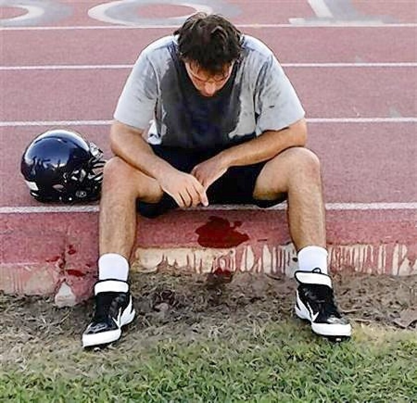 McClintock High School Chargers football player Joe Sanford takes a break from practice after feeling light-headed in Tempe, Arizona