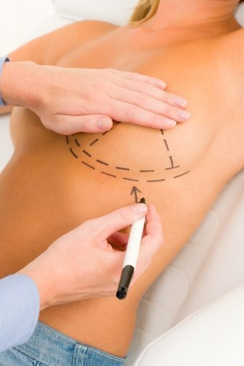 Breast augmentation revision surgery is a necessary measure for many plastic surgery patients.